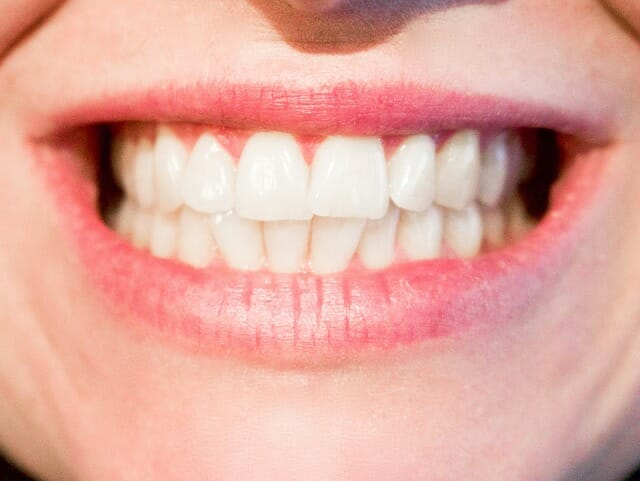 Healing Tooth Cavities Naturally - Quotidien Lejour